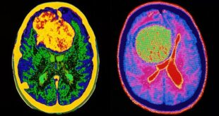 Brain Tumors: Who Gets Them and What Is the Survival Rate?