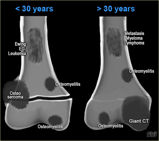 Primary and Metastatic Bone Cancers